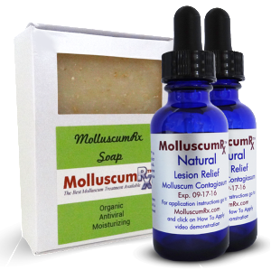MolluscumRx Soap & 2 Bottles