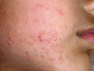 photo of molluscum on face