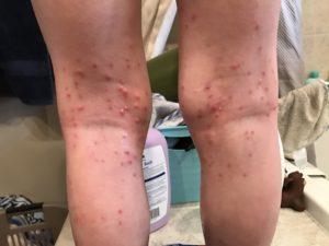 molluscum behind legs