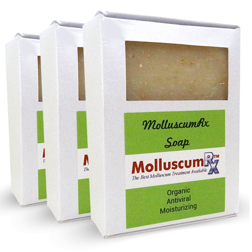 MolluscumRx Soap 3 Bars